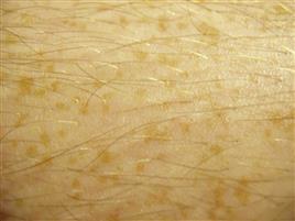 Odos ligų gydymas